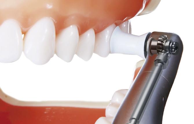 根本的な解決をする当院の歯周病治療
